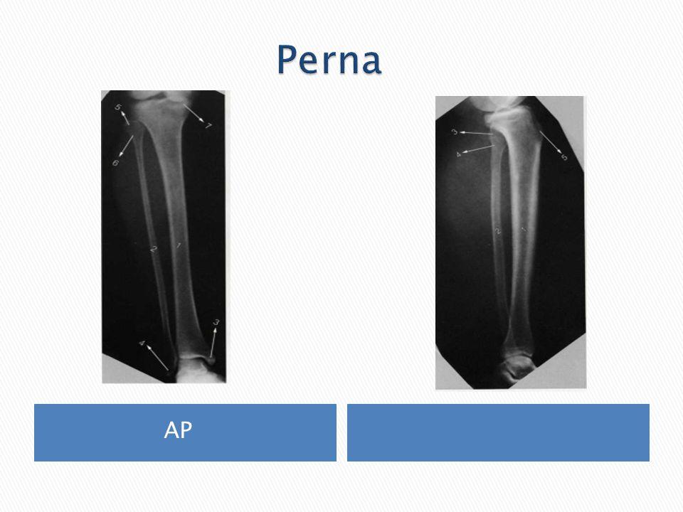 Perna AP