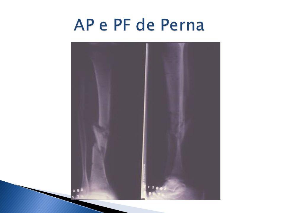 AP e PF de Perna
