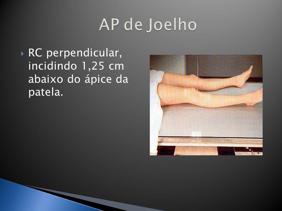 AP de Joelho RC perpendicular, incidindo 1,25 cm abaixo do ápice da patela.