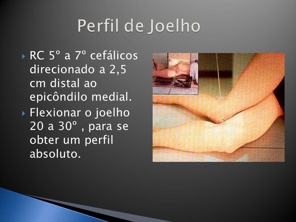 Perfil de Joelho RC 5º a 7º cefálicos direcionado a 2,5 cm distal ao epicôndilo medial.