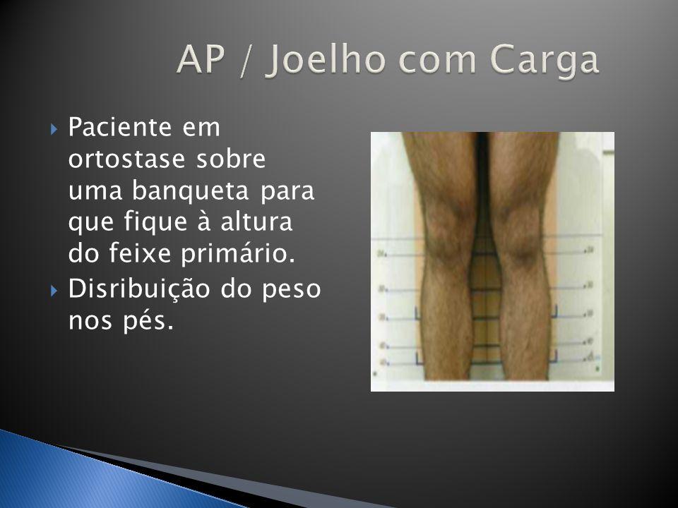 AP / Joelho com Carga Paciente em ortostase sobre uma banqueta para que fique à altura do feixe primário.