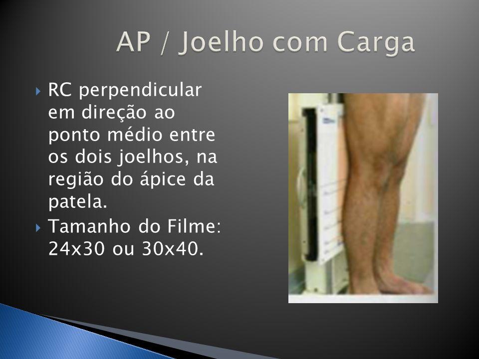 AP / Joelho com Carga RC perpendicular em direção ao ponto médio entre os dois joelhos, na região do ápice da patela.