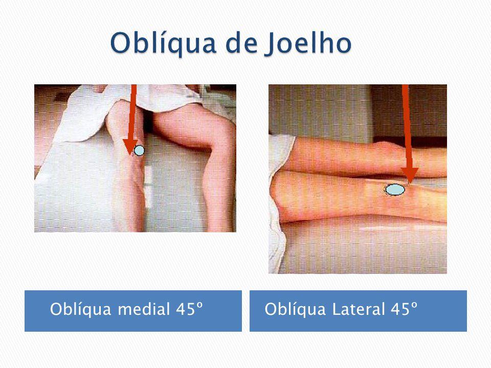 Oblíqua de Joelho Oblíqua medial 45º Oblíqua Lateral 45º