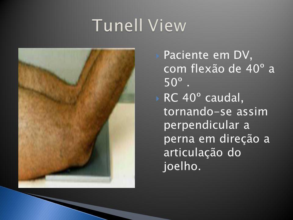 Tunell View Paciente em DV, com flexão de 40º a 50º .