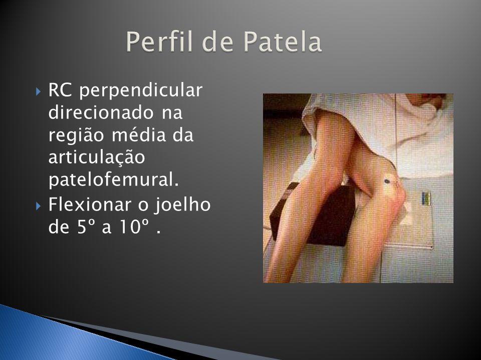 Perfil de Patela RC perpendicular direcionado na região média da articulação patelofemural.