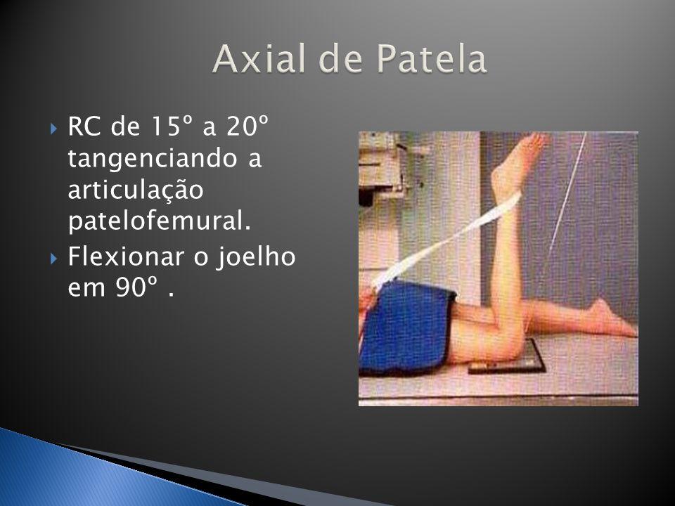 Axial de Patela RC de 15º a 20º tangenciando a articulação patelofemural.