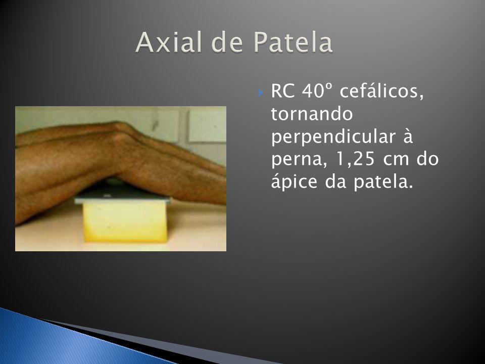 Axial de Patela RC 40º cefálicos, tornando perpendicular à perna, 1,25 cm do ápice da patela.