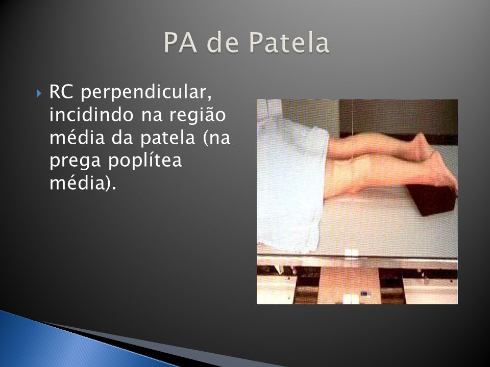 PA de Patela RC perpendicular, incidindo na região média da patela (na prega poplítea média).
