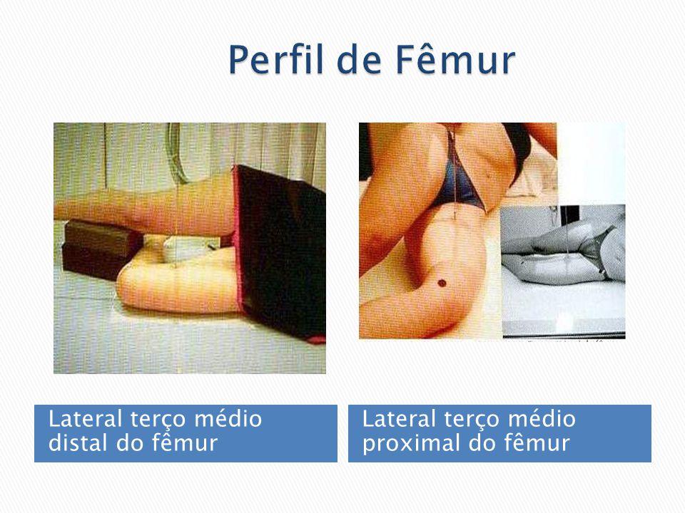 Perfil de Fêmur Lateral terço médio distal do fêmur