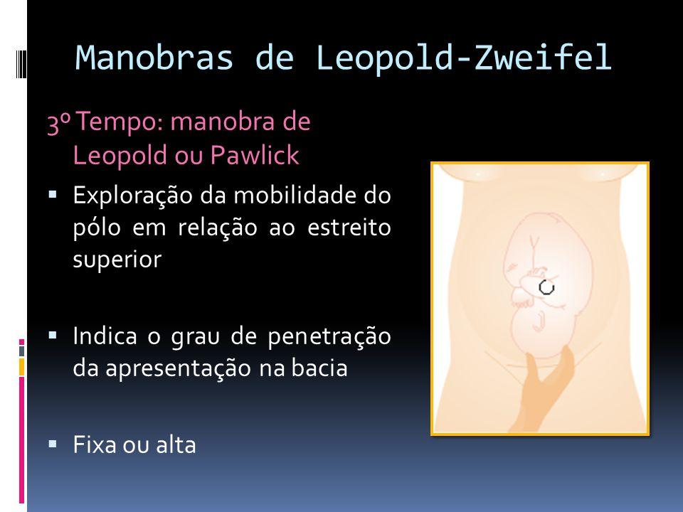 Manobras de Leopold-Zweifel
