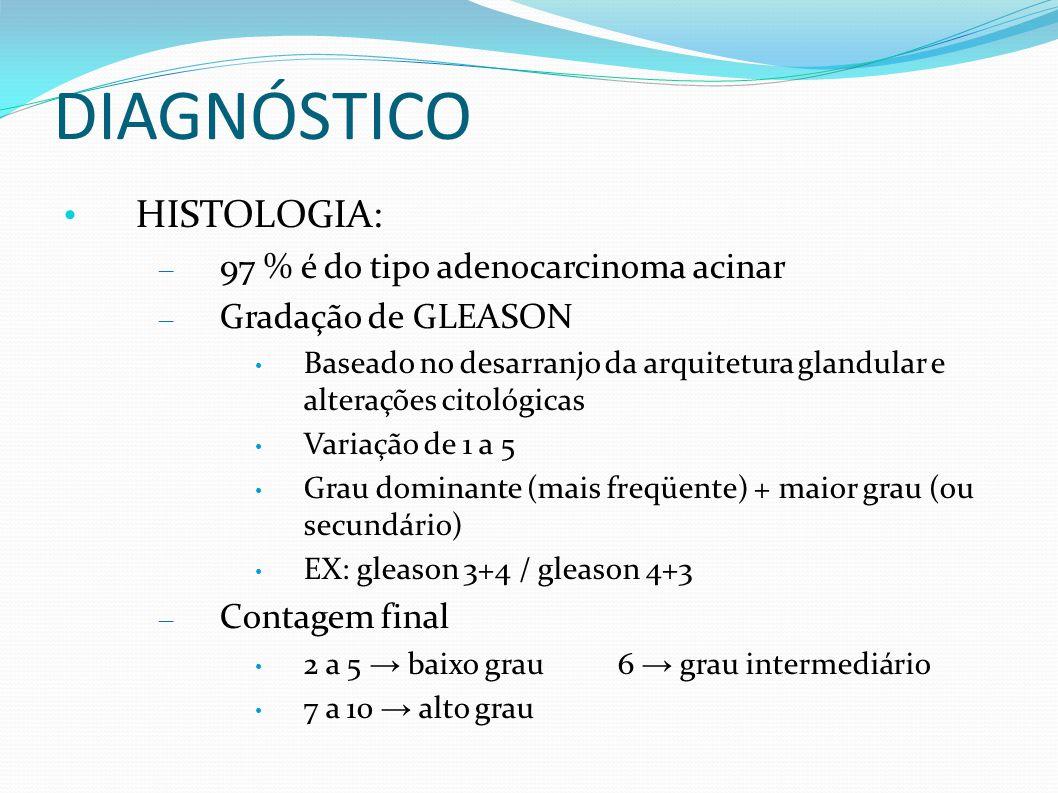 DIAGNÓSTICO HISTOLOGIA: 97 % é do tipo adenocarcinoma acinar