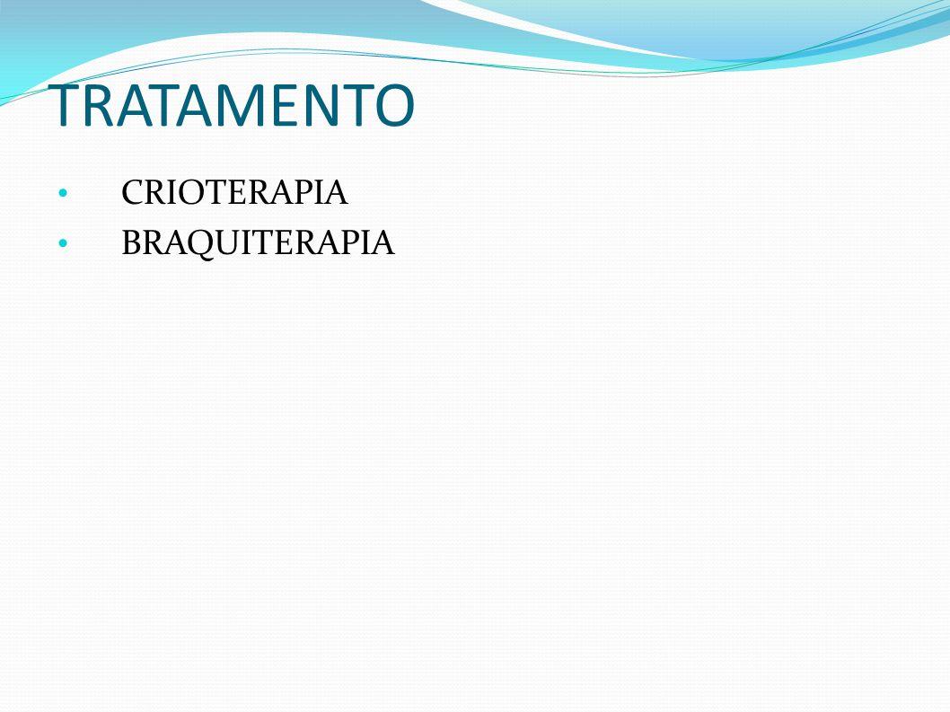 TRATAMENTO CRIOTERAPIA BRAQUITERAPIA
