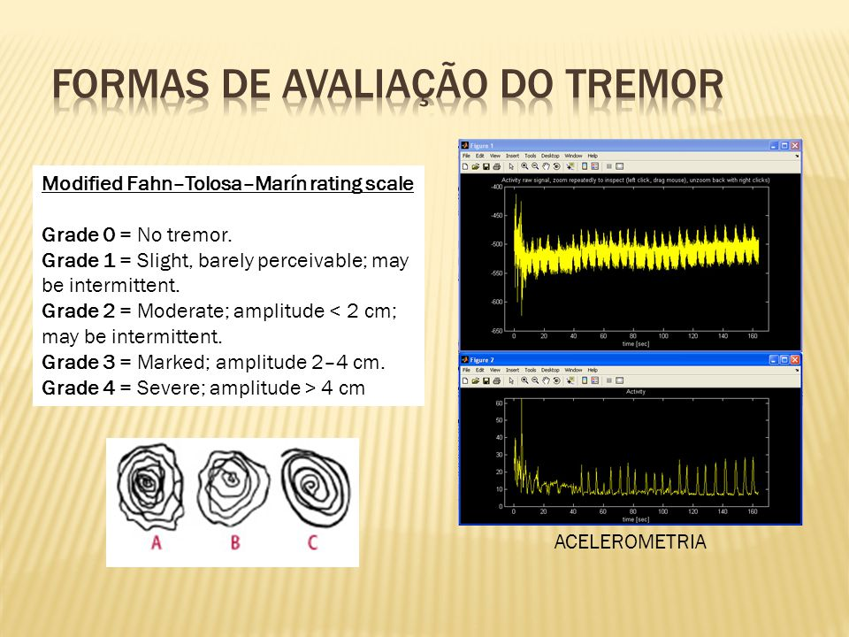 Formas de avaliação do tremor