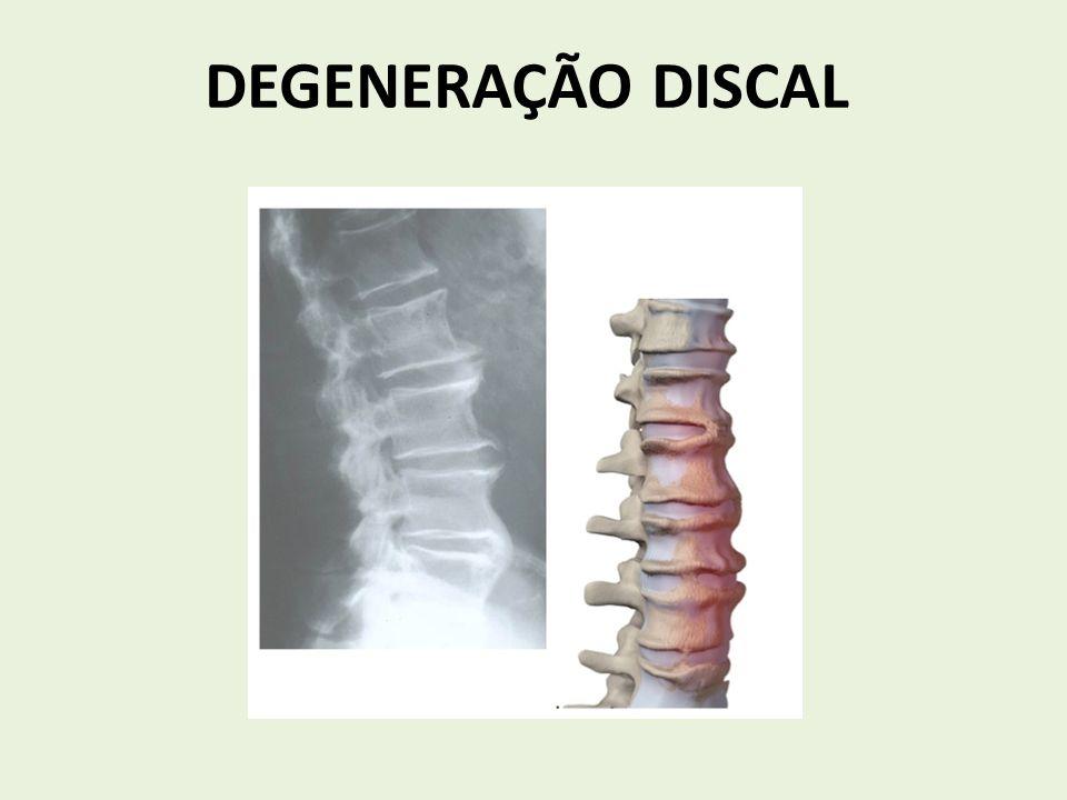 DEGENERAÇÃO DISCAL
