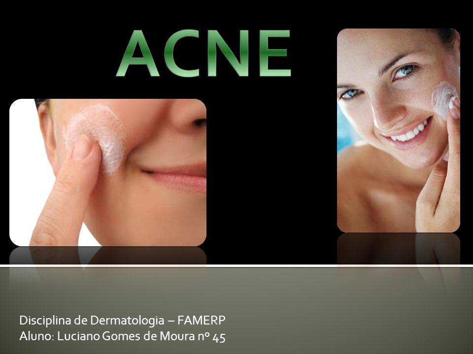 ACNE Disciplina de Dermatologia – FAMERP