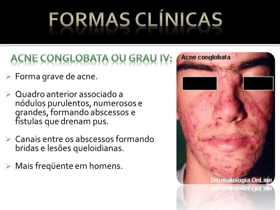 Formas Clínicas ACNE CONGLOBATA OU GRAU IV: Forma grave de acne.