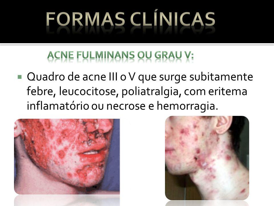 Formas Clínicas ACNE FULMINANS OU GRAU V: