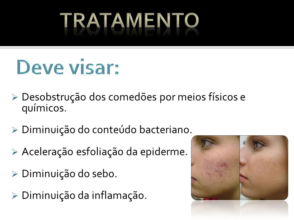 Tratamento Deve visar: