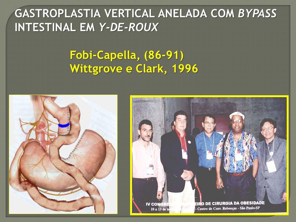 GASTROPLASTIA VERTICAL ANELADA COM BYPASS