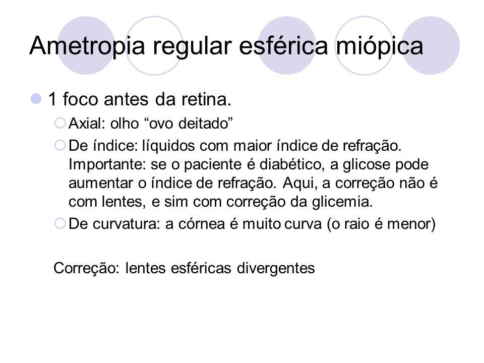 Ametropia regular esférica miópica