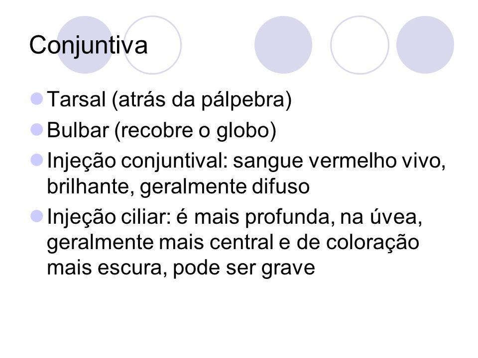 Conjuntiva Tarsal (atrás da pálpebra) Bulbar (recobre o globo)