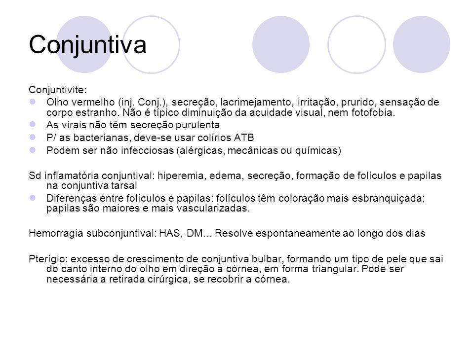 Conjuntiva Conjuntivite: