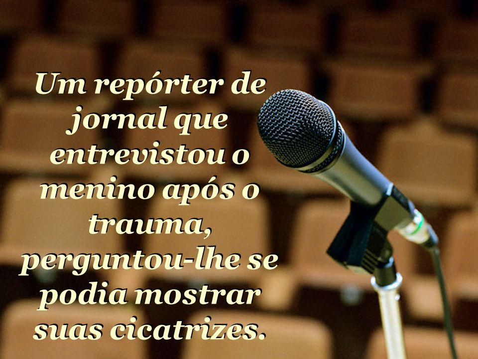 Um repórter de jornal que entrevistou o menino após o trauma, perguntou-lhe se podia mostrar suas cicatrizes.