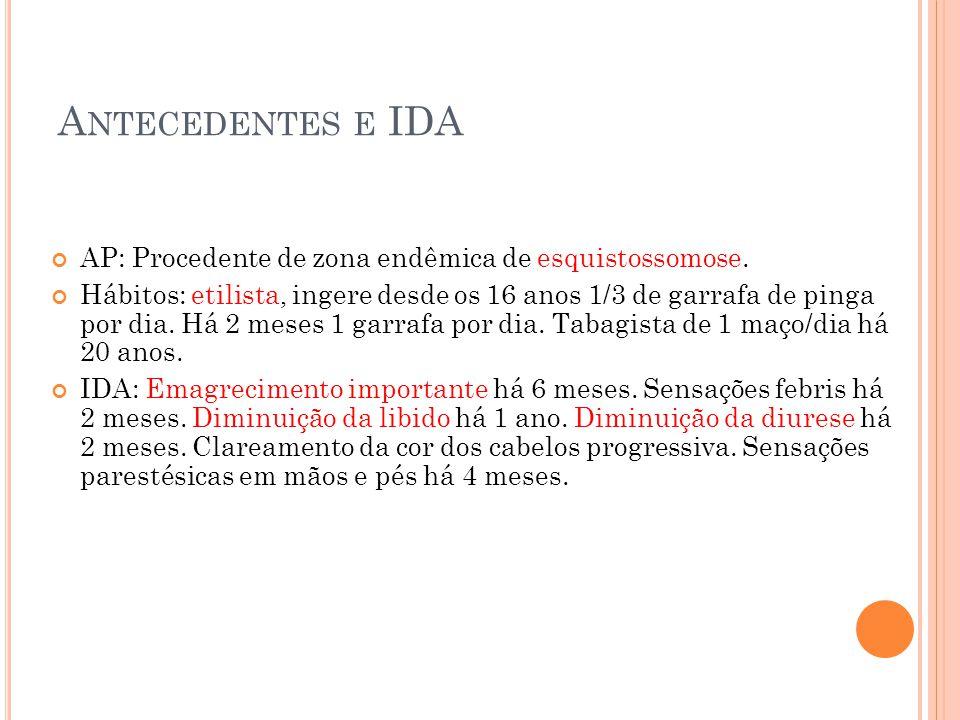 Antecedentes e IDA AP: Procedente de zona endêmica de esquistossomose.