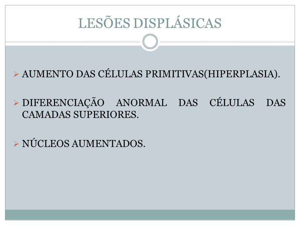 LESÕES DISPLÁSICAS AUMENTO DAS CÉLULAS PRIMITIVAS(HIPERPLASIA).