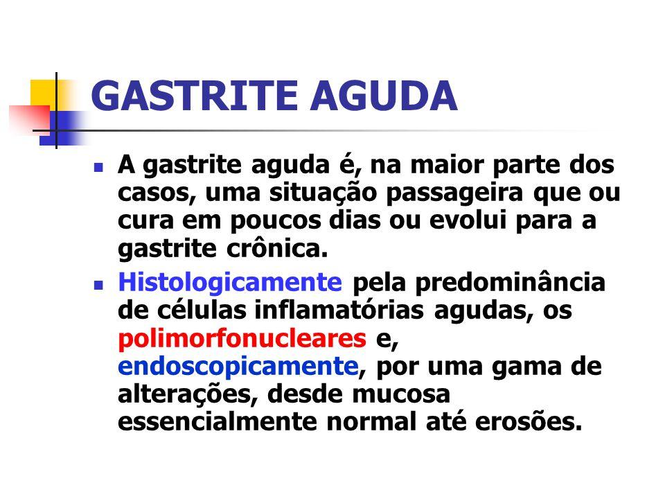 GASTRITE AGUDA A gastrite aguda é, na maior parte dos casos, uma situação passageira que ou cura em poucos dias ou evolui para a gastrite crônica.