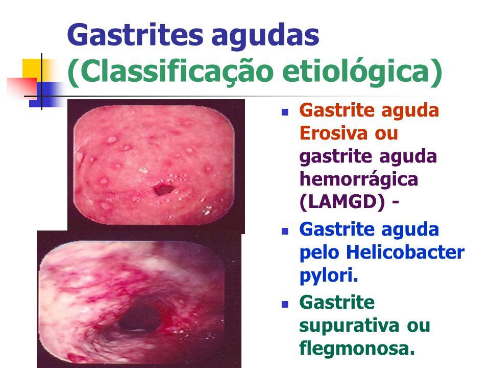 Gastrites agudas (Classificação etiológica)