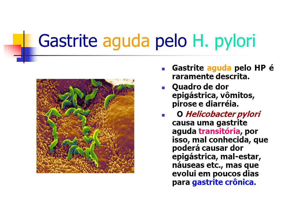 Gastrite aguda pelo H. pylori