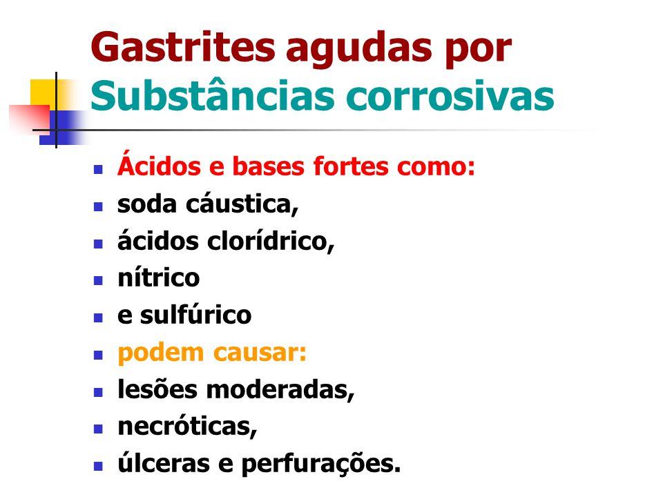 Gastrites agudas por Substâncias corrosivas