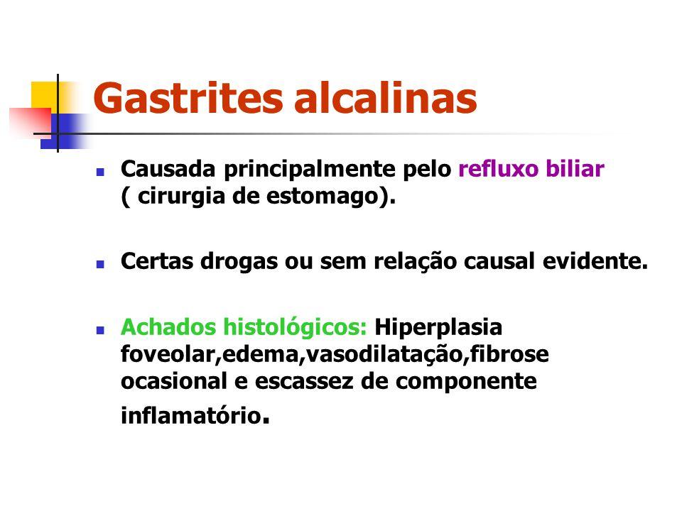 Gastrites alcalinas Causada principalmente pelo refluxo biliar ( cirurgia de estomago). Certas drogas ou sem relação causal evidente.