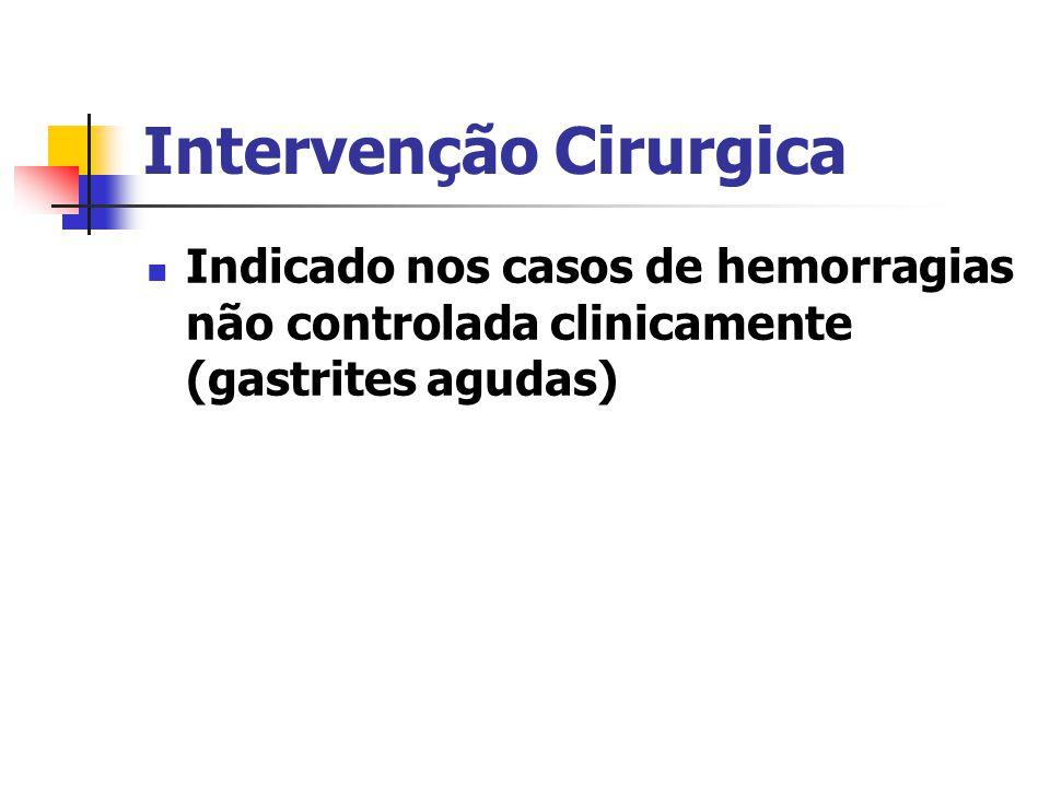 Intervenção Cirurgica