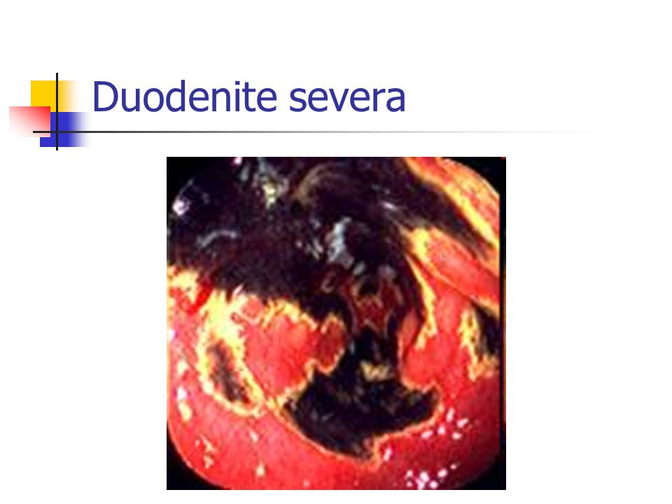 Duodenite severa