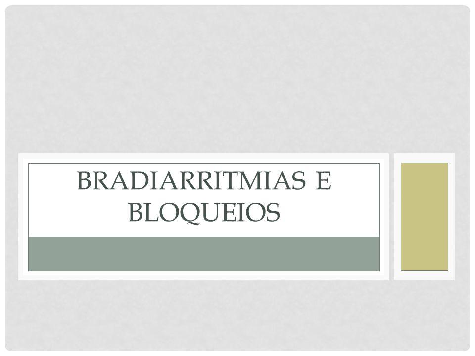 Bradiarritmias e bloqueios