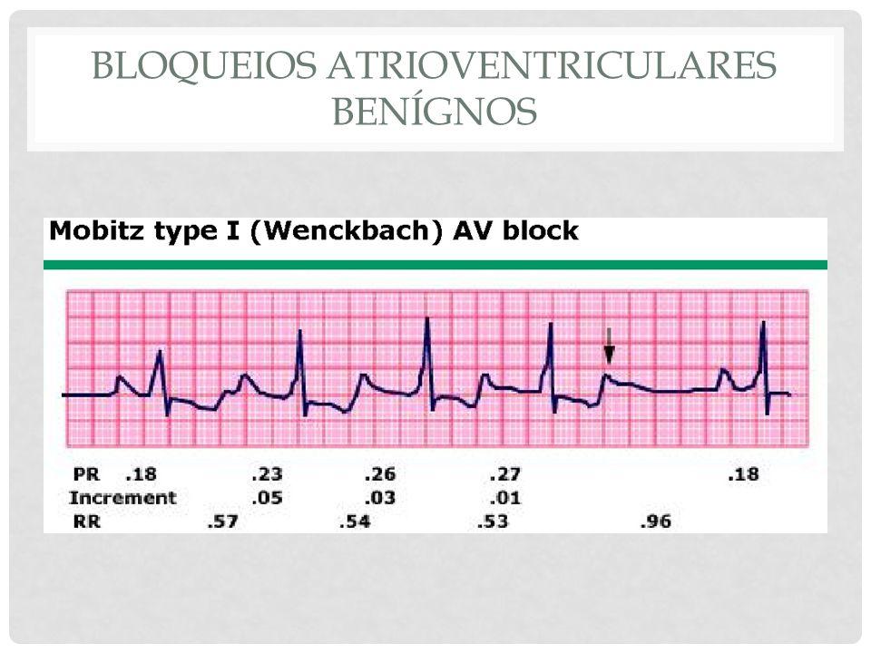 Bloqueios atrioventriculares benígnos
