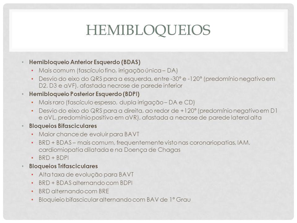 Hemibloqueios Hemibloqueio Anterior Esquerdo (BDAS)