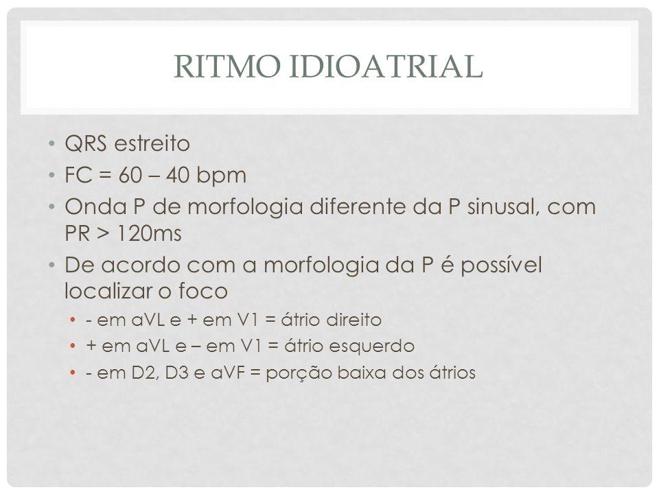 Ritmo Idioatrial QRS estreito FC = 60 – 40 bpm