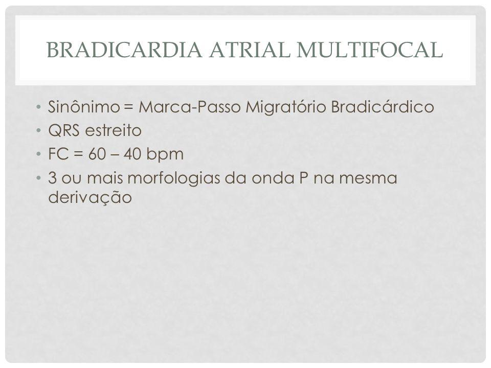 Bradicardia atrial multifocal