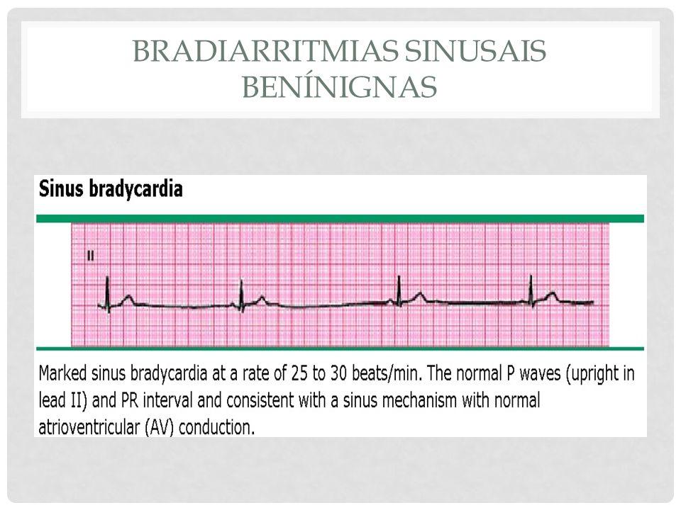 Bradiarritmias sinusais benínignas