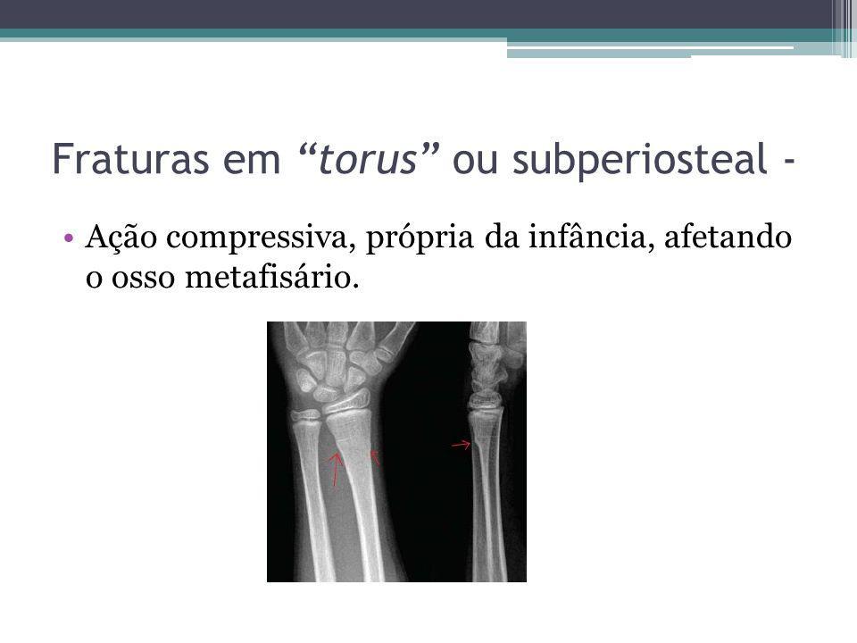 Fraturas em torus ou subperiosteal -