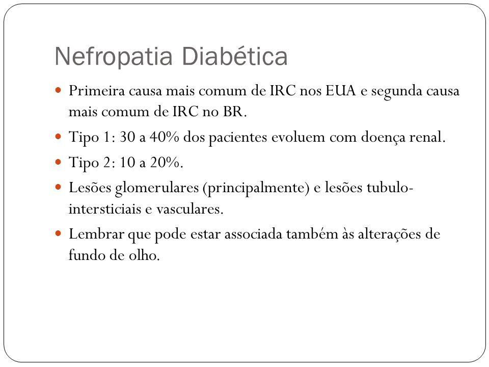 Nefropatia Diabética Primeira causa mais comum de IRC nos EUA e segunda causa mais comum de IRC no BR.