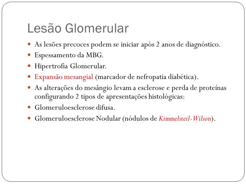 Lesão Glomerular As lesões precoces podem se iniciar após 2 anos de diagnóstico. Espessamento da MBG.