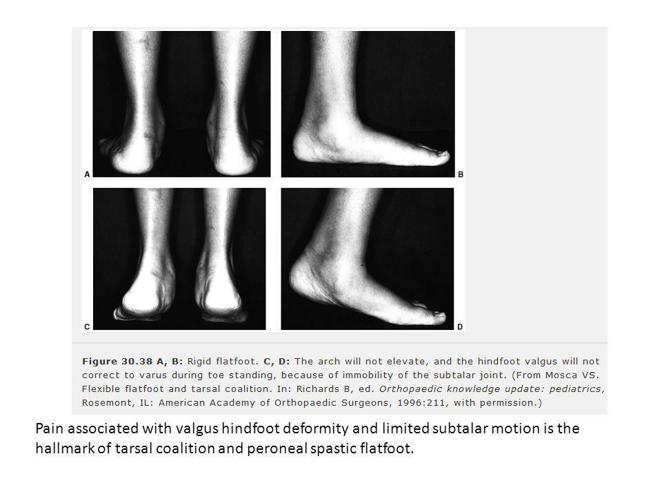 Pain associated with valgus hindfoot deformity and limited subtalar motion is the hallmark of tarsal coalition and peroneal spastic flatfoot.