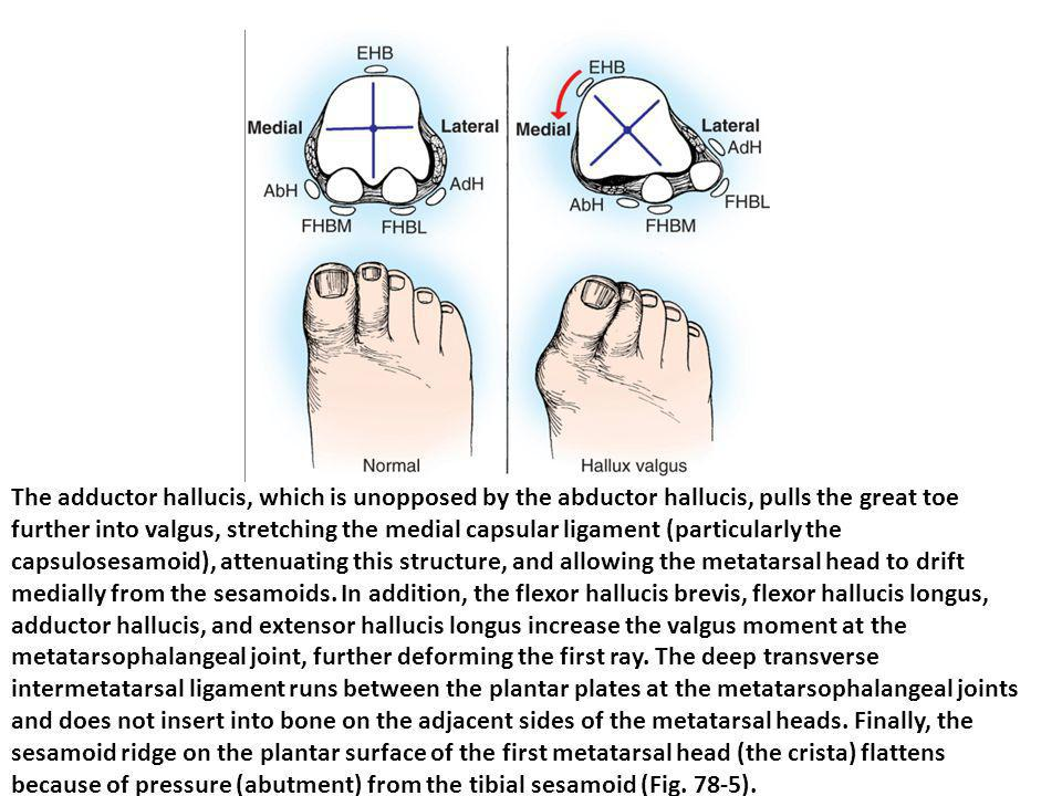 The adductor hallucis, which is unopposed by the abductor hallucis, pulls the great toe further into valgus, stretching the medial capsular ligament (particularly the capsulosesamoid), attenuating this structure, and allowing the metatarsal head to drift medially from the sesamoids.
