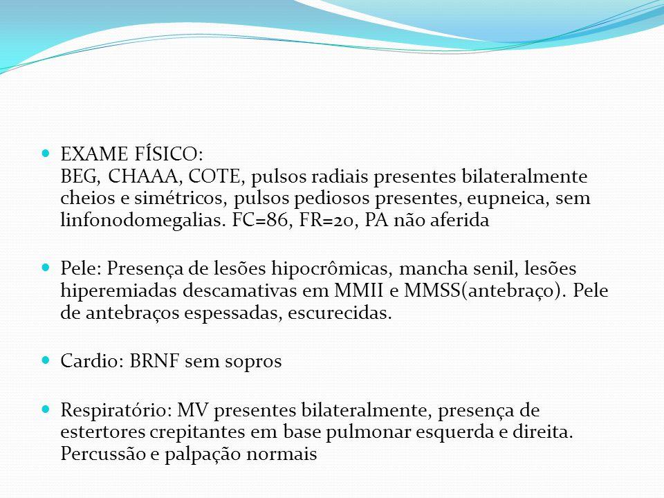 EXAME FÍSICO: BEG, CHAAA, COTE, pulsos radiais presentes bilateralmente cheios e simétricos, pulsos pediosos presentes, eupneica, sem linfonodomegalias. FC=86, FR=20, PA não aferida