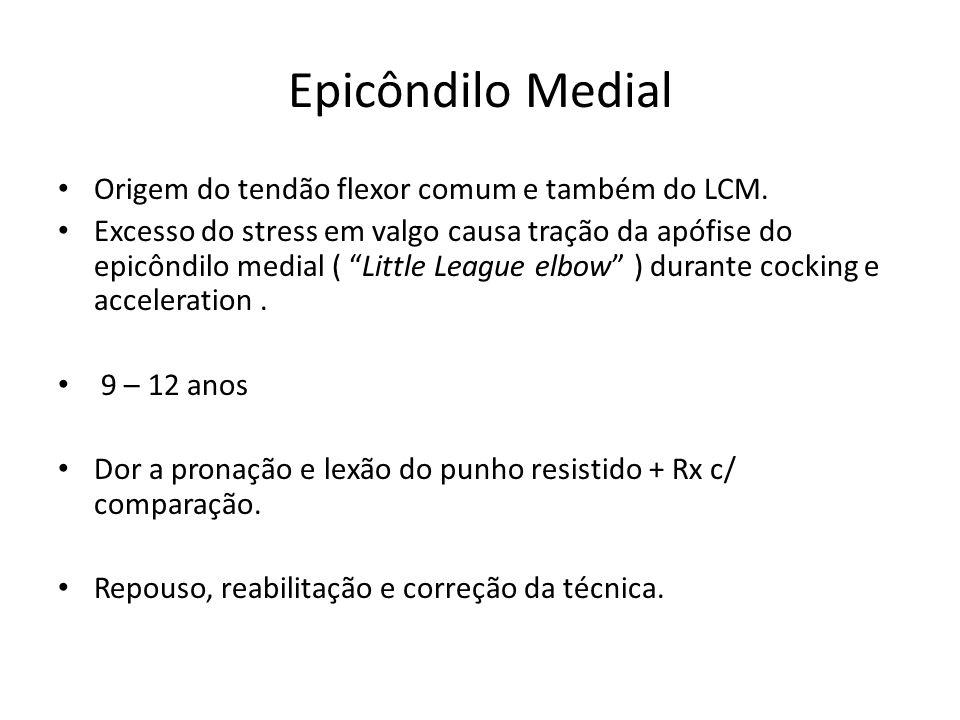 Epicôndilo Medial Origem do tendão flexor comum e também do LCM.