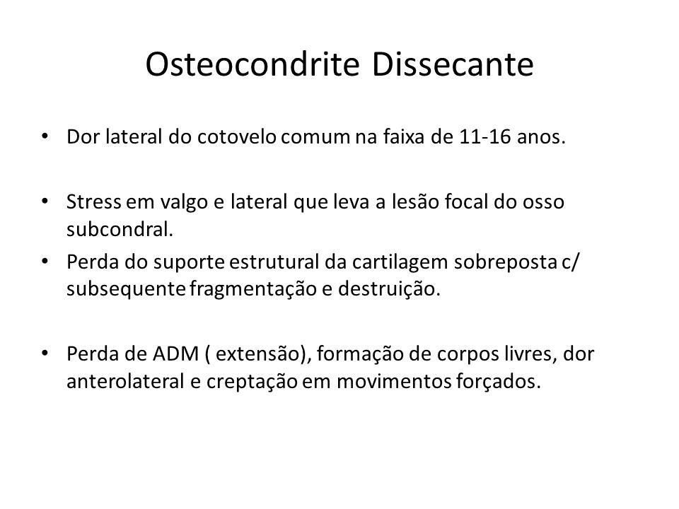 Osteocondrite Dissecante